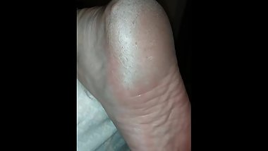 Wife dry rough soles sleeping